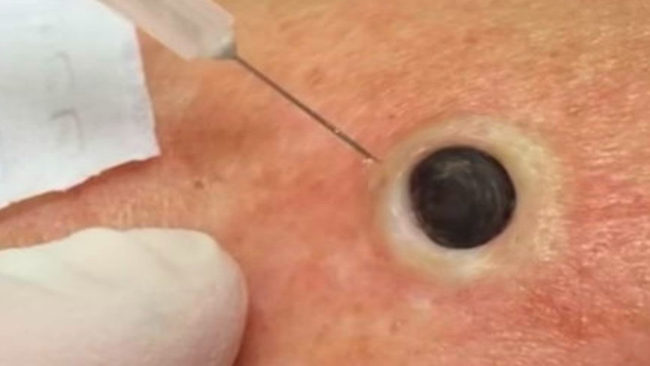 Pimples Pops Ingrown Nails Zits Blackhead Popping