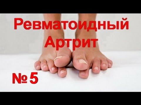 Артрит, артроз - лечение суставов народными средствами