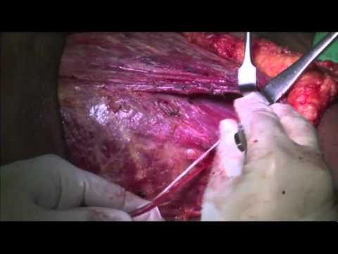 MRM    Modified Radical Mastectomy and Level I , II, III ALND   Part 05