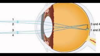 Human Eye Vision