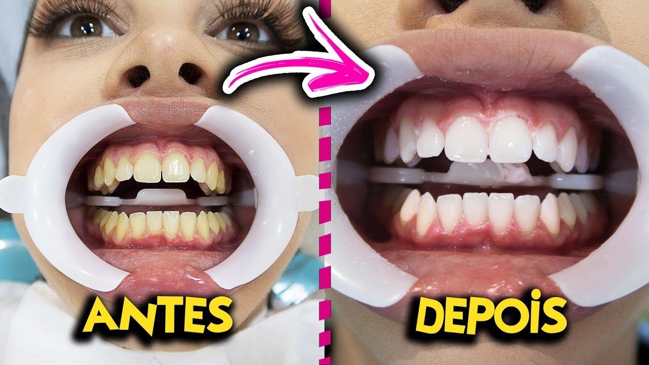 Como Clarear Os Dentes Em 3 Semanas Resultado Imediato Youtube