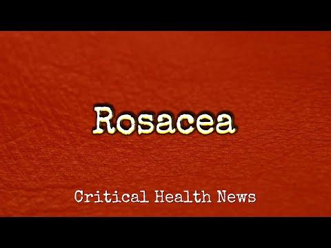 rosacea---pharmacist-ben-fuchs---moment-of-truth
