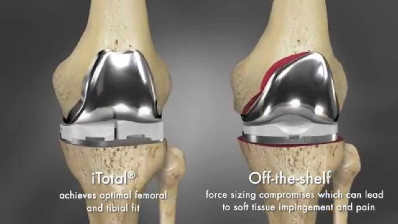 Dr oz knee replacement