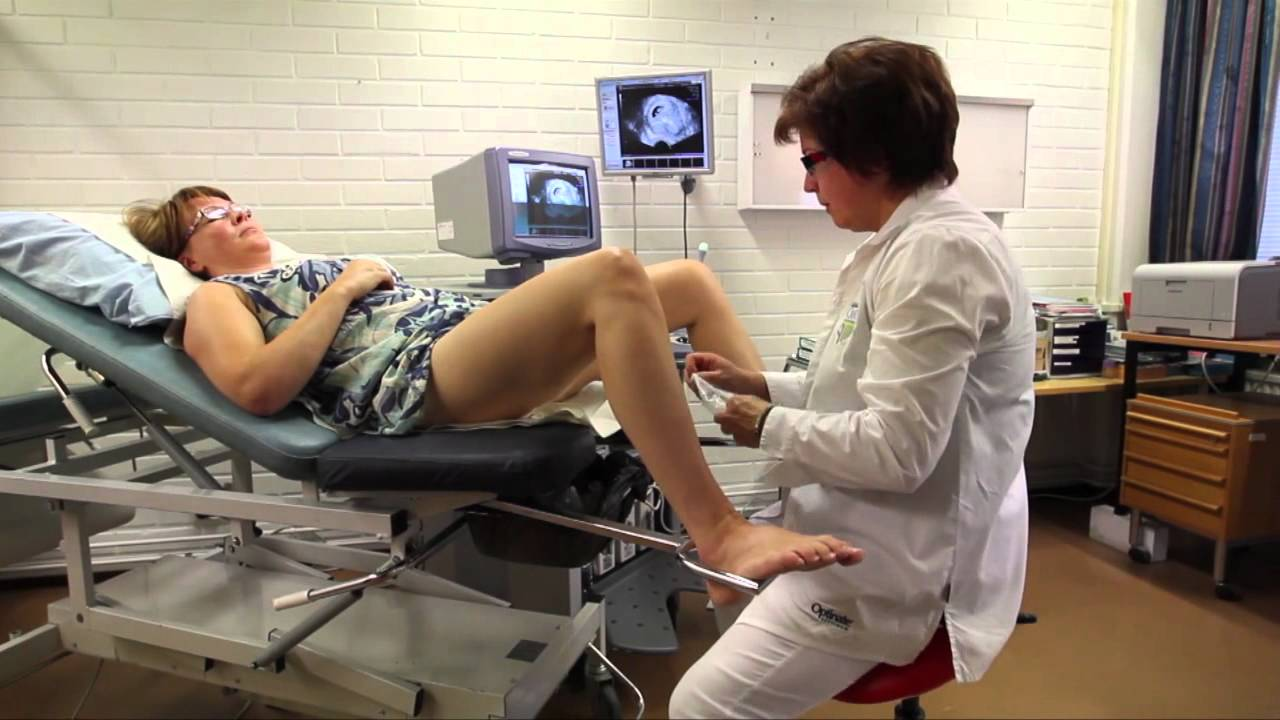 gynecologist exam video