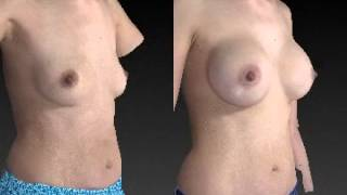 Breast Augmentation 3D Before and After 12