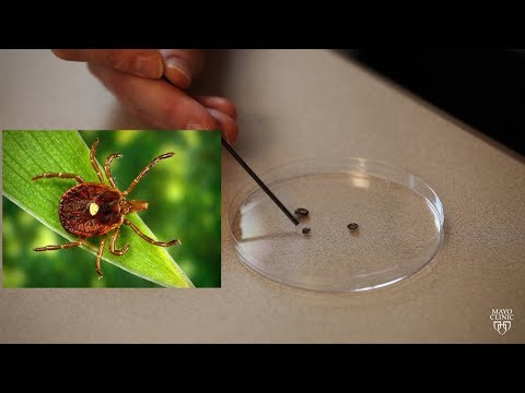 Mayo Clinic Minute: Rise in tick-related meat allergy