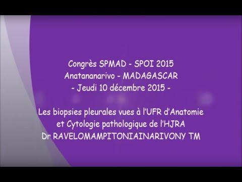 Les biopsies pleurales vues à l'UFR d'Anatomie et Cytologie pathologique de l'HJRA   Dr RAVELOMAMPIT