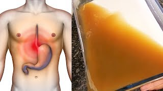 How to Treat Stomach Ulcers, Acid Reflux and Gastritis Naturally