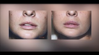 Lip Augmentation   Silicone, Fillers, Injectables