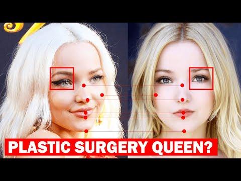 Dove Cameron BEFORE Plastic Surgery?