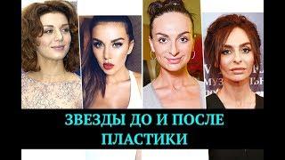Звезды, которые сделали пластические операции | Top Show News