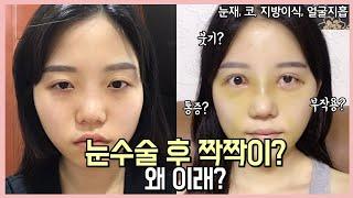 [눈재수술붓기]  눈수술 후 붓기가 짝짝이? 완전 부작…