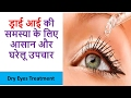 DRY EYES | ड्राई आई के लिए आसान और घरेलु उपाय | Dry Eyes Treatment in Hindi