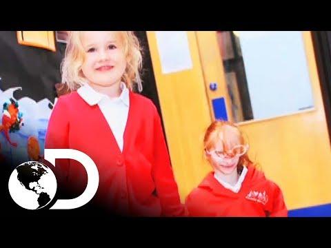 La niña miniatura | Mi Cuerpo, Mi Desafío l Discovery Latinoamérica