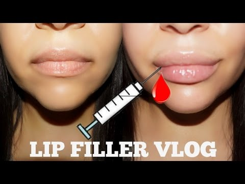Getting Lip Injections for the first time !   Honest Vlog !
