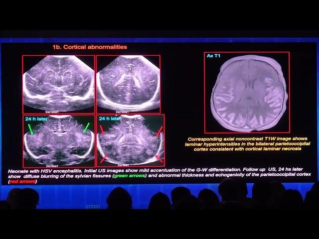 Hallazgos ecográficos que se omiten con frecuencia en la valoración de la hipoxia cerebral