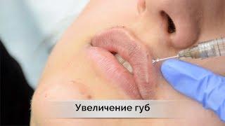 Увеличение губ в Самаре