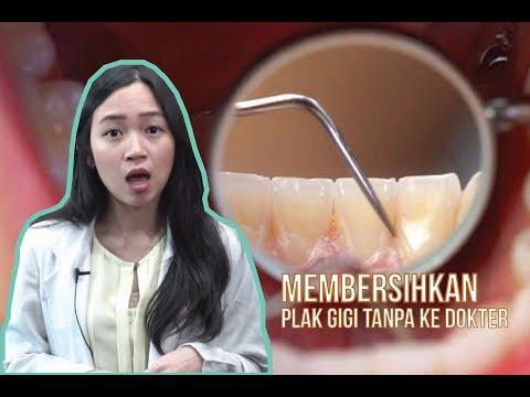 Cara Mengatasi Karang Gigi Tanpa Ke Dokter