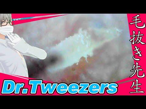 359 [200x Zoom] 継続するには支援が必要です Dr. tweezers 毛抜き先生の角栓や毛根