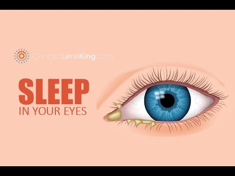 Eye Discharge, Eye Boogers, Rheum, Sleep In Your Eyes. What Is It? What Causes It?