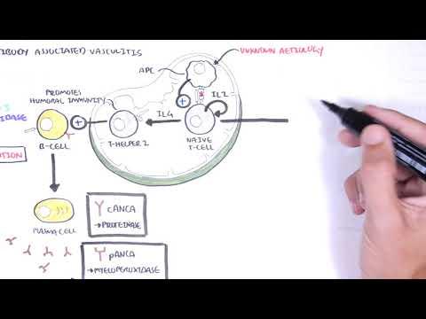 ANCA (Anti-Neutrophil Cytoplasmic Antibody) Associated Vasculitis - Causes, Pathophysiology, Types