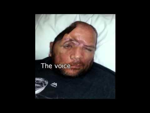 Walter DeLeon, Shot in the Head by LAPD, Speaks on Filing Complaint