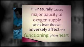 Obstructive Sleep Apnea: Syndrome, Symptoms, Treatments