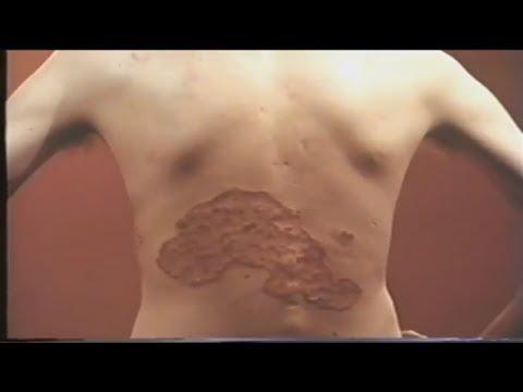 Стригущий лишай - пути заражения, виды, симптомы, лечение