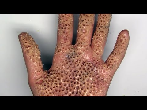 TRYPOPHOBIA ALERT! Killer Insect Destroys Hand; Is It Real?