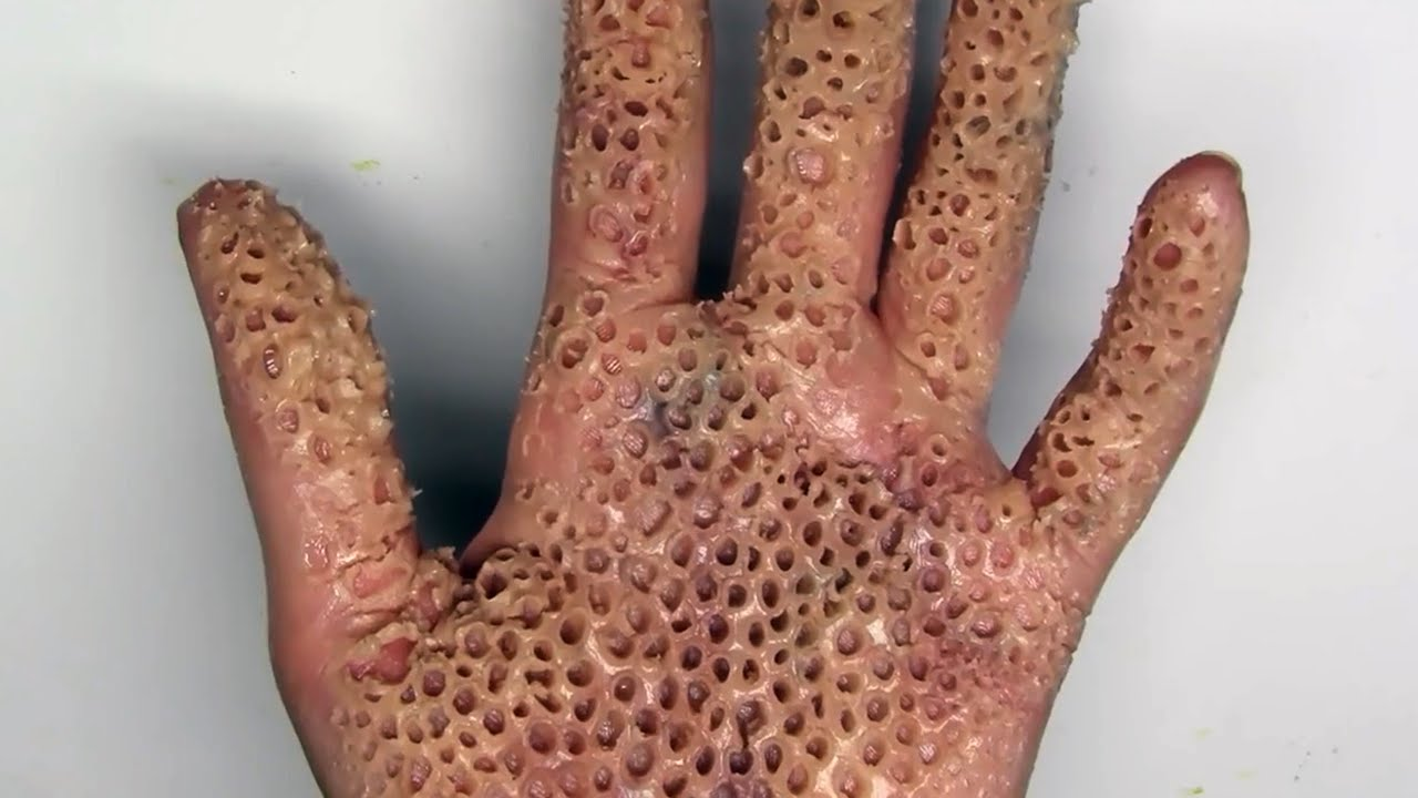 Trypophobia Alert Killer Insect Destroys Hand Is It Real Youtube