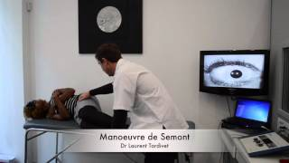 Manoeuvre de Semont - Le vertige paroxystique positionnel bénin