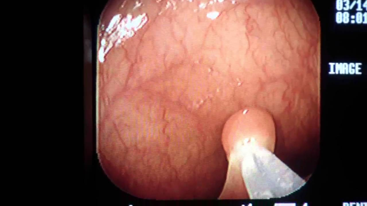 Removal Of Small Colon Polyp During Colonoscopy Los Angeles