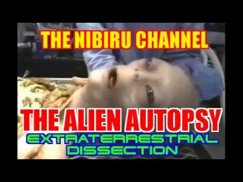 ALIEN AUTOPSY... The Dissection of an Extraterrestrial