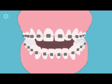 How To Brush Your Teeth With Braces - A Step By Step Guide
