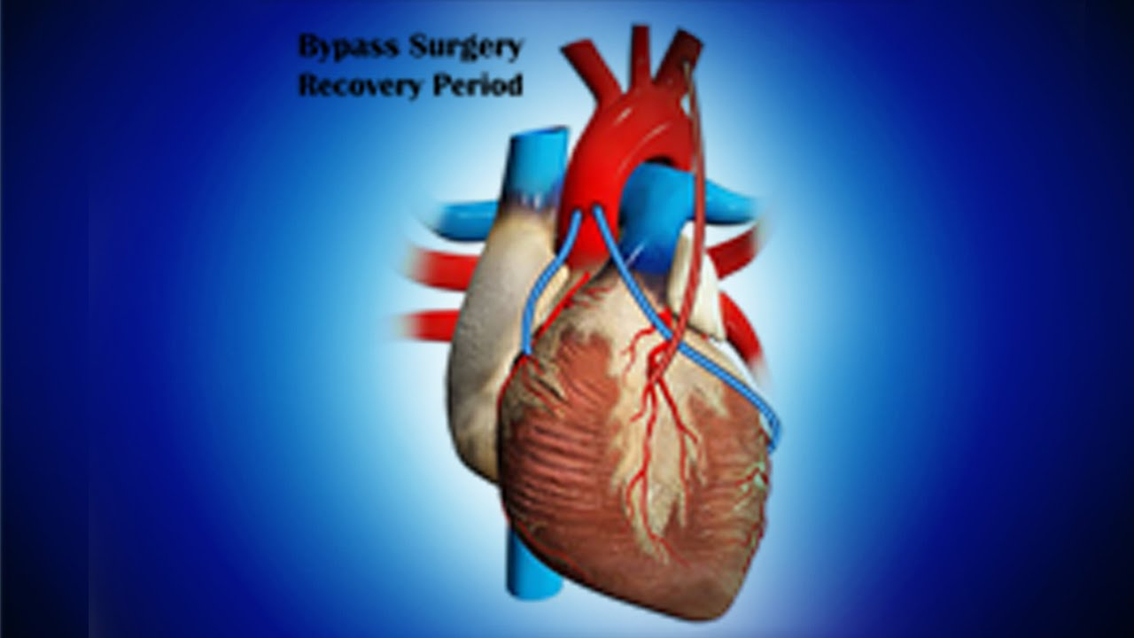 Bypass Surgery Recovery Period - YouTube
