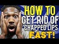 HOW TO CURE CHAPPED LIPS FAST !
