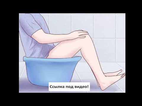 How to treat osteochondrosis of the cervical spine