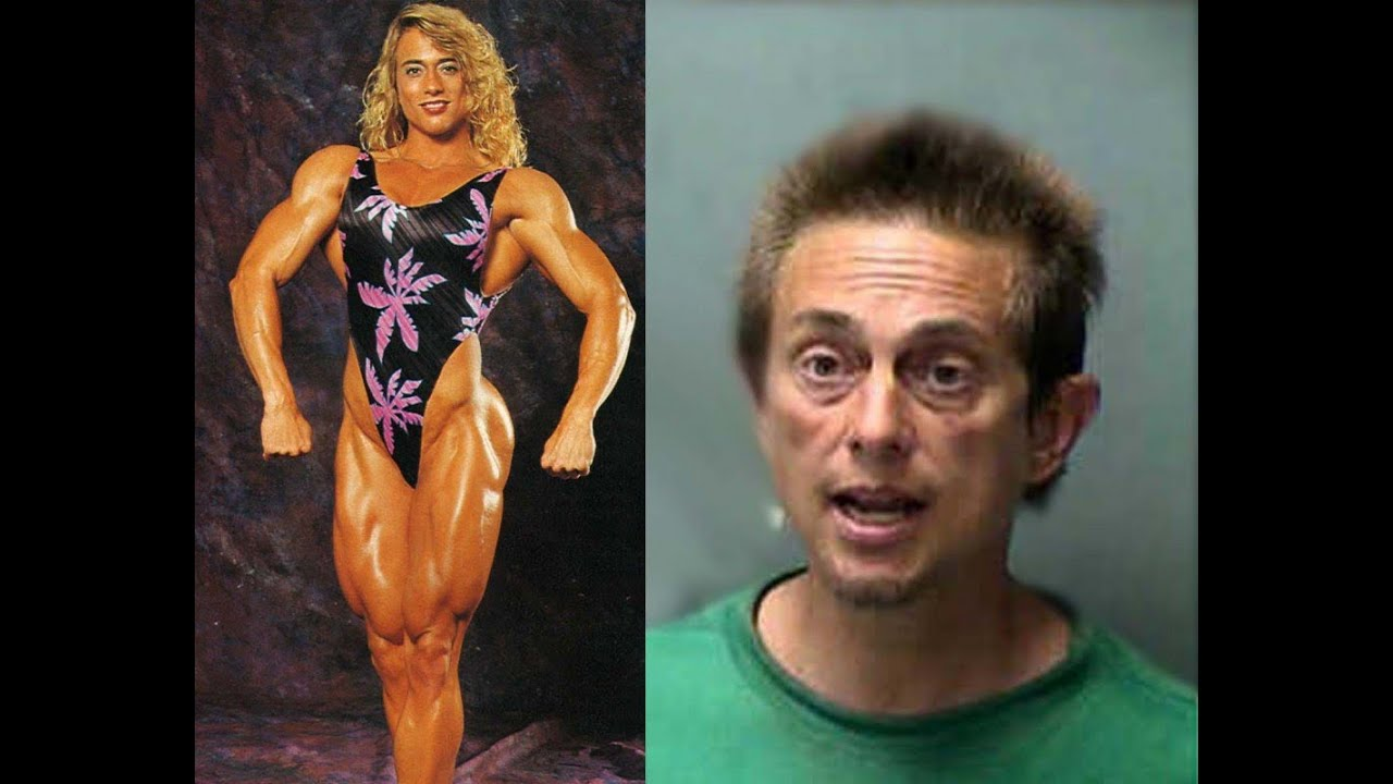 Speaking My Mind: Insane Before And After Steroid Abuse