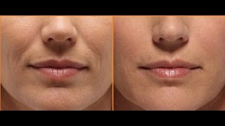 Smooth Out Smile Wrinkles With Face Massage / Laugh Wrinkles / Nasolabial Fold