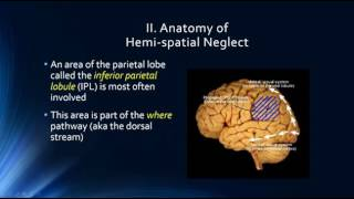 Neurophysiology of Attention: Hemi-spatial Neglect