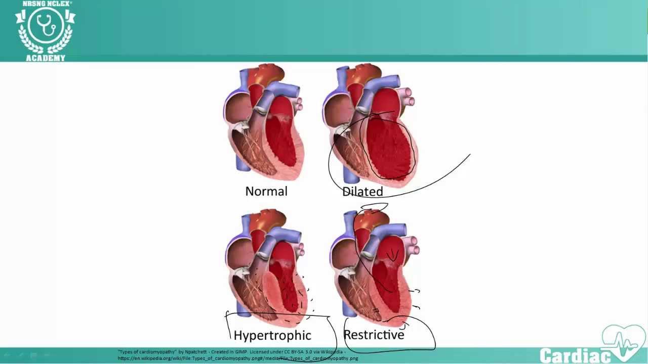 cardiomyopathy nclex cardiac review nrsng academy youtube