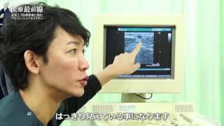 密着!下肢静脈瘤治療に挑むプロフェッショナルドクター