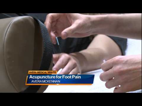 Acupuncture for foot pain Medical Minute