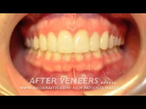 Teeth Veneers Before And After Newport Beach Cosmetic Dentist