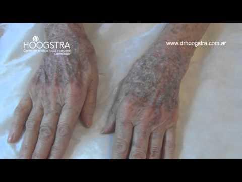 Manchas en las manos (15058)