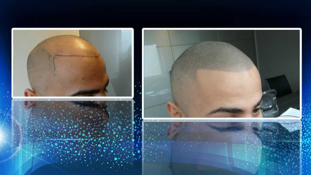 Scalp Micro Hair Pigmentation (SMP) - YouTube