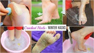 Winter HACKS for CRACKED Heels You MUST Try - फटी एड़ियों से छुटकारा पाएं | Anaysa