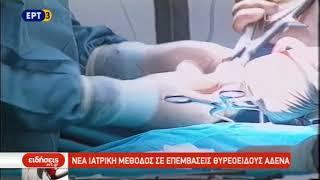 ΚΑΡΑΚΟΖΗΣ ΣΤΑΥΡΟΣ, MD ΧΕΙΡΟΥΡΓΟΣ ΘΥΡΕΟΕΙΔΟΥΣ