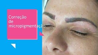 Correção Sobrancelhas Micropigmentadas