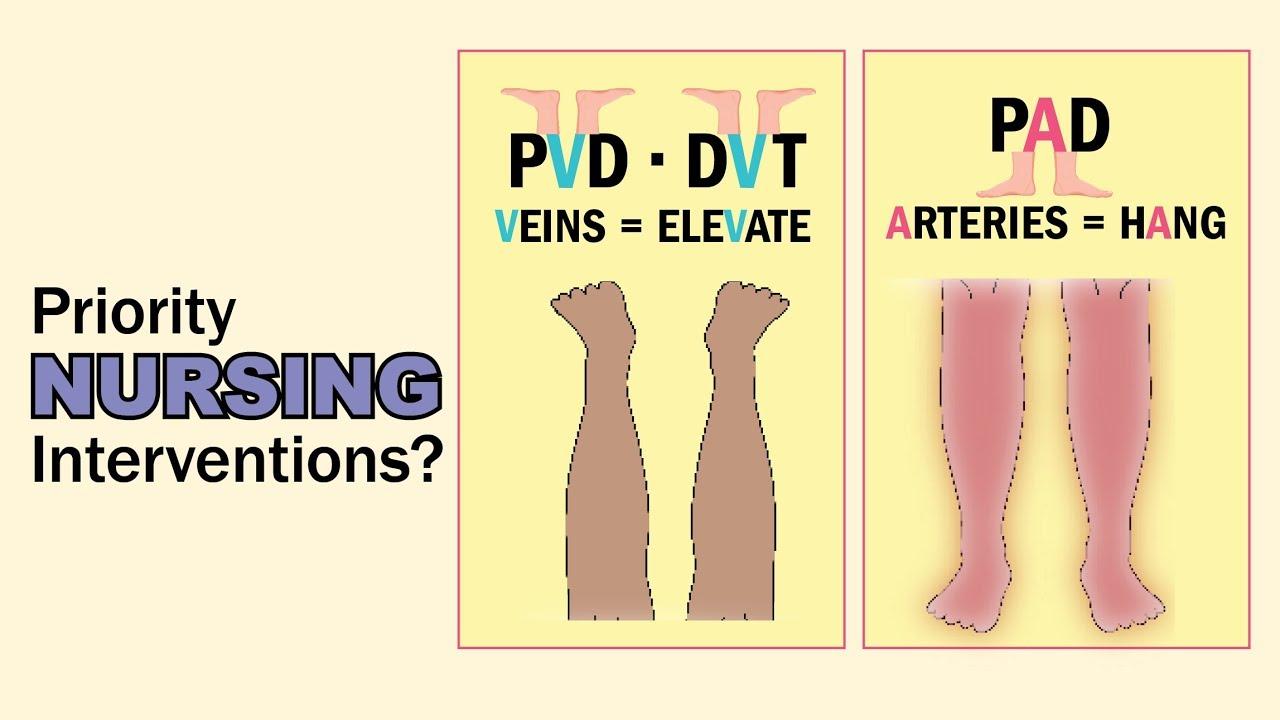 Questions nclex pad pvd vs